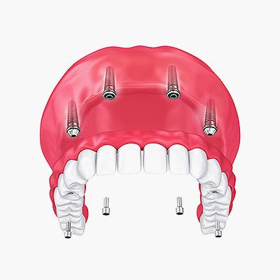 Proteza całkowita utrzymywana na belce opartej na 4 implantach w żuchwie.